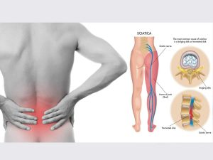 My Back Pain Coach Review - How I Cure My Sciatica Without Surgery